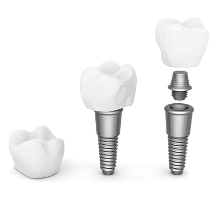 Implant dental: pas a pas